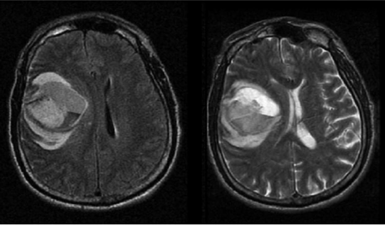 На снимке видно кровоизлияние в ткань головного мозга левого полушария