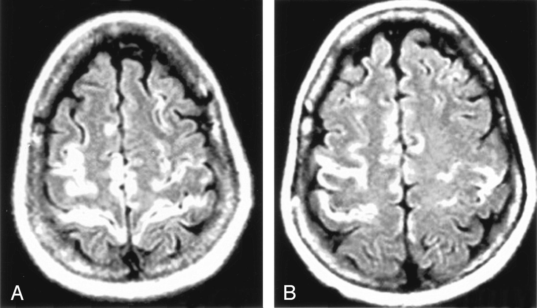 На снимке видно увеличение пространства между мягкой и паутинной оболочкой, очаги ишемии белого цвета разных размеров при энцефалопатии