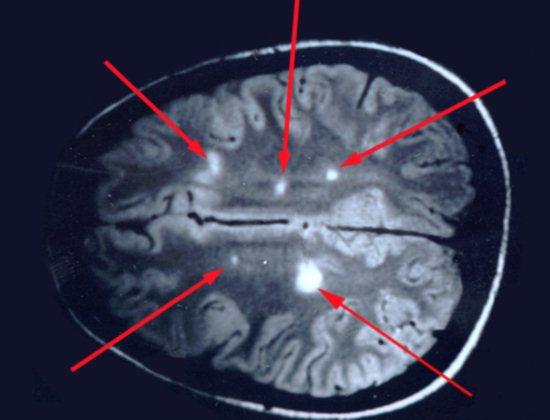 На снимке стрелками указаны очаги поражения, характерные для рассеянного склероза после введения контрастного вещества