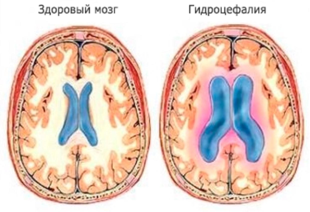На рисунке схематично изображено симметричное увеличение боковых желудочков при гидроцефалии