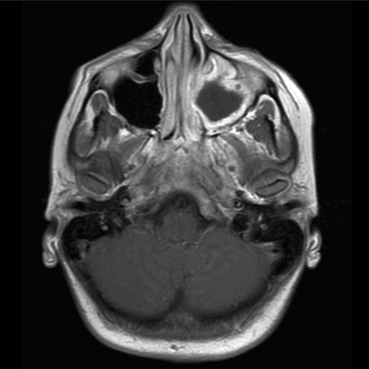 На снимке видно признаки патологического процесса в правой гайморовой пазухе, предположительно отек и экссудат